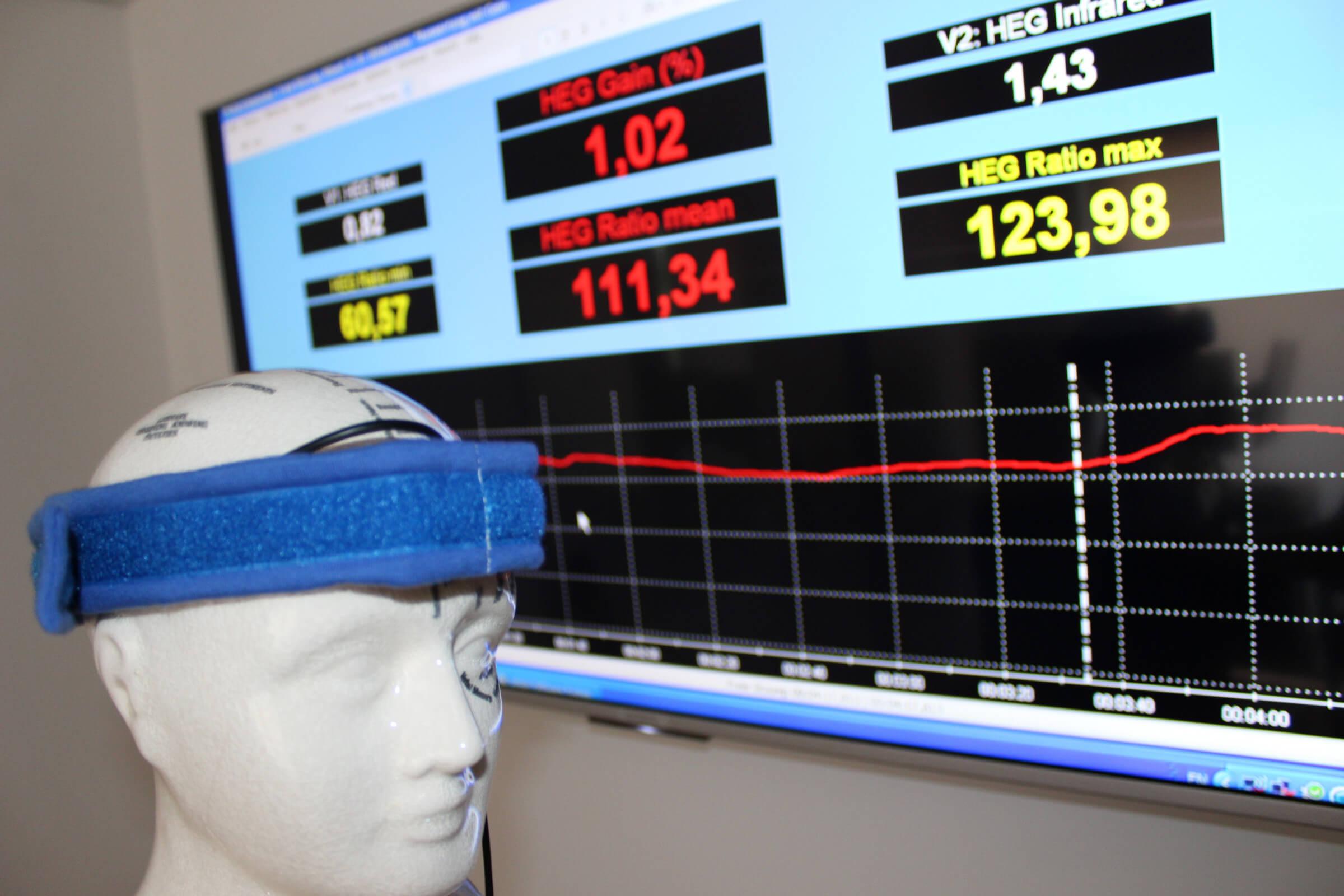 Die leistungsstarke Enkoder-Einheit mit 8 Kanälen besitzt alle Möglichkeiten und Flexibilitäten, </br>die man für Echtzeit-basiertes, computerunterstütztes Biofeedback und Neurofeedback (HEG) benötigt